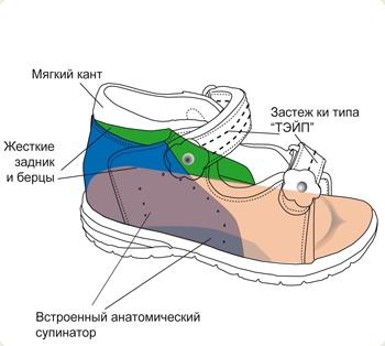 Профілактичне взуття від патологій та наслідків