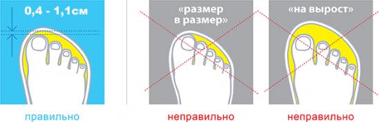 Как нельзя подбирать ортопедическую обувь! Фото 3