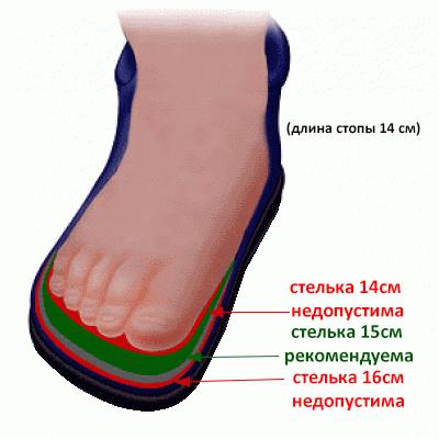 Как нельзя подбирать ортопедическую обувь! Фото 2