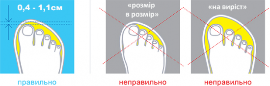 Як не можна обирати ортопедичне взуття! Фото 3