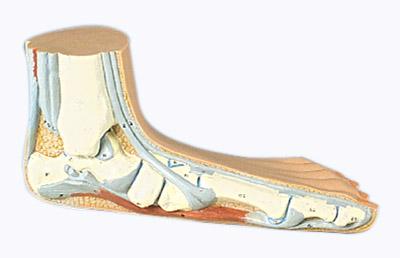 Упражнения для стоп при плоскостопии ног